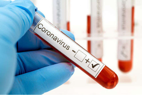 Системы безопасности в борьбе с пандемией: технологии против COVID-19